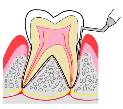 歯周検~1