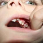 歯茎が腫れて痛い!原因は?効果的な応急処置は?